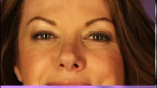 botox deirdre 121609 Thumbnail