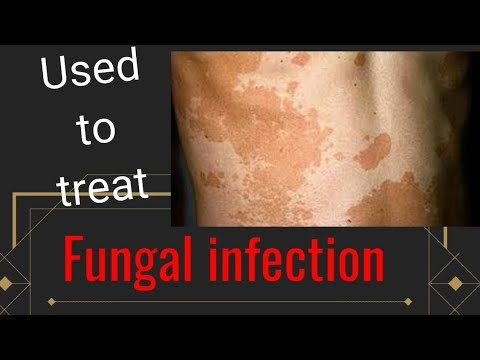 Fluconazole =used To Treat Fungal Infections