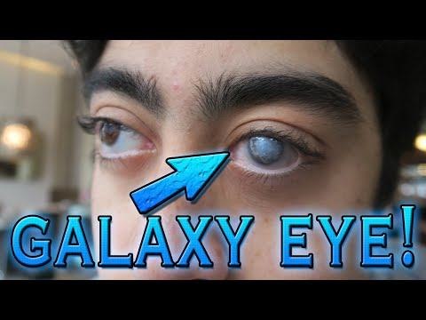 WHAT THE HELL HAPPENED TO HIS EYE!? (GALAXY EYE)