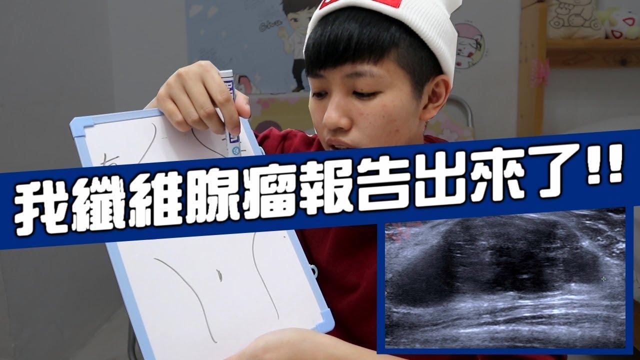 [chu日常] 纖維腺瘤的報告出來了!! - YouTube