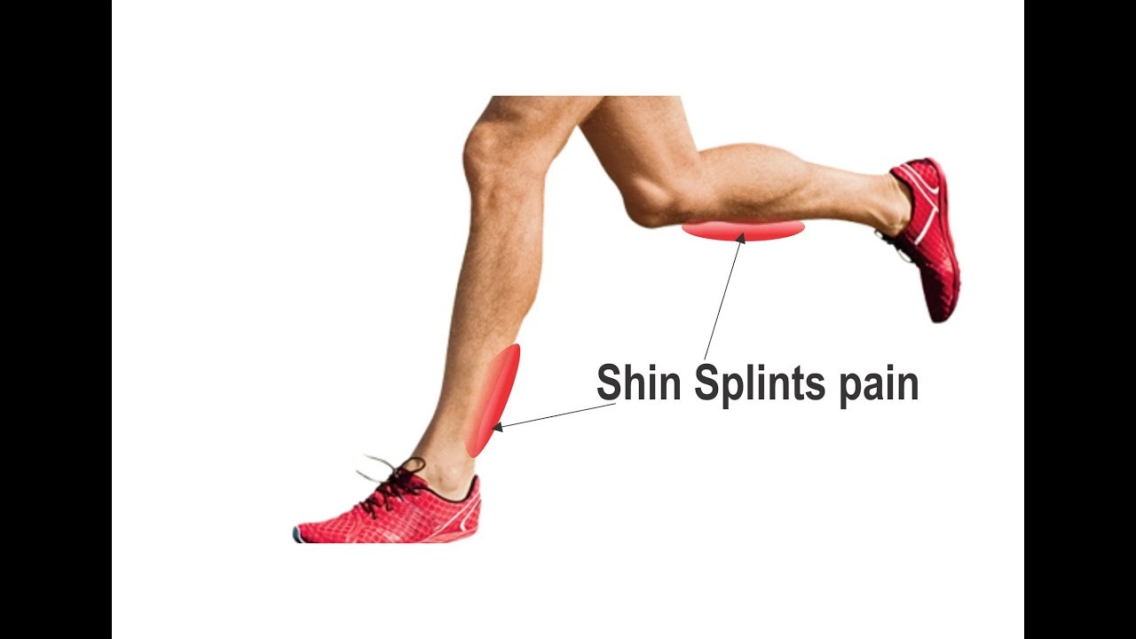 Shin Splints: How to Treat and Prevent Them From Ruining Your Run recommend
