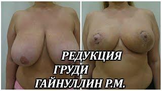 видео Уменьшение грудей