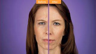 Botoks Uygulamaları - Botox ve dolgu işlemleri nasıl yapılır?