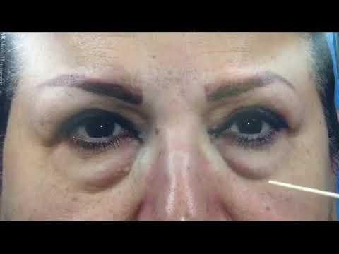 اصلاح افتادگی پلک بالا و پف زیر چشم توسط دکتر اکبر بیات فوق تخصص جراحی سر و گردن