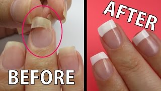 REPAIR A RIPPED NAIL FAST!