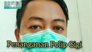 Polip Gigi|Cabut Gigi Polip|Pencabutan Polip Gigi.