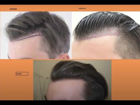 Geheimratsecken Haartransplantation mit FUE - Dr. Mwamba - 1030 Grafts