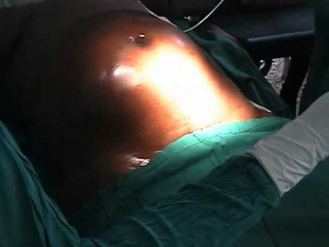 Obstetrics and Gynaecology - Total Abdominal Hysterectomy Cleansing and  draping the patient