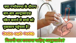 क्या गर्भावस्था के दौरान बार बार अल्ट्रासाउंड स्कैन करवाने से गर्भस्थ शिशु को कोई नुकसान हो सकता है।