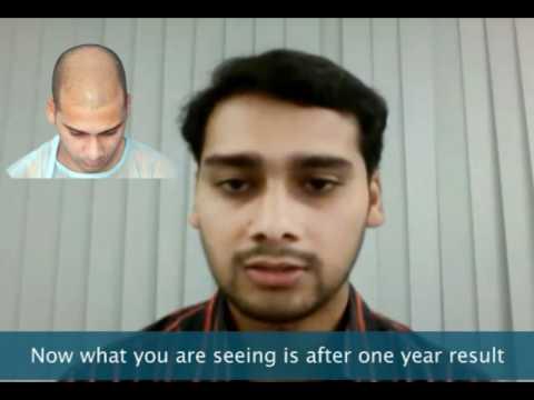 Hair transplant indiadelhi mumbai youtube hair transplant indiadelhi mumbai pmusecretfo Image collections