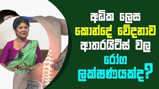 අධික ලෙස කොන්දේ වේදනාව ආතරයිටීස් වල රෝග ලක්ෂණයක්ද? | Piyum Vila | 25 - 03 - 2021 | SiyathaTV Thumbnail
