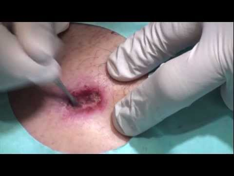 DermTV - Skin Cancer Removal Demonstration - GRAPHIC [DermTV.com Epi #318]