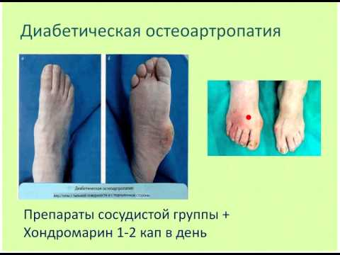 kak-lechit-troficheskuyu-yazvu-na-noge-pri-diabete