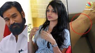 Singer Suchitra Was Manhandled? Complains against Dhanush! | #Suchileaks