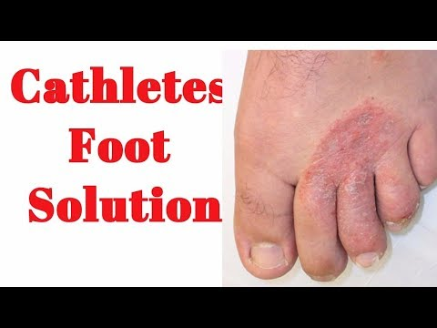 Remedy for Toenail Fungus & Athlete's Foot | Natural Fungus Killer | Cracked feet