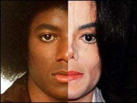 Чем болел Майкл Джексон? Здоровье и внешний вид знаменитого певца.