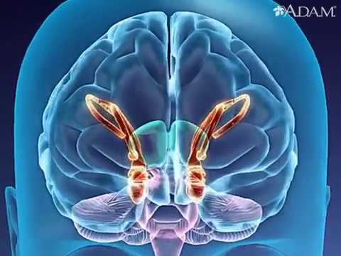 Alzheimer disease   Health Video Medical Encyclopedia