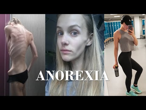 Anorexic To Athlete | My Story