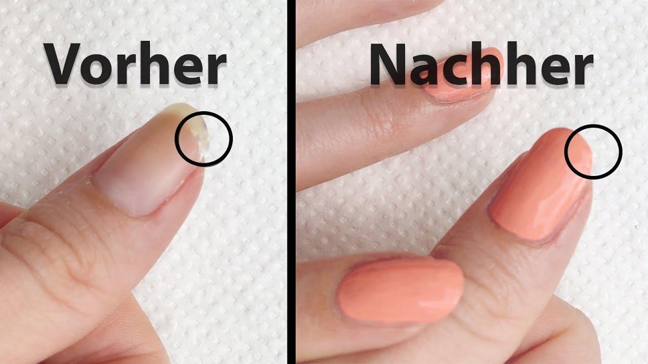 Erfreut Nagel, Wie Man Bilder - Nagellack-Ideen ...