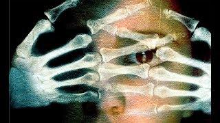 Frágiles (Trailer)