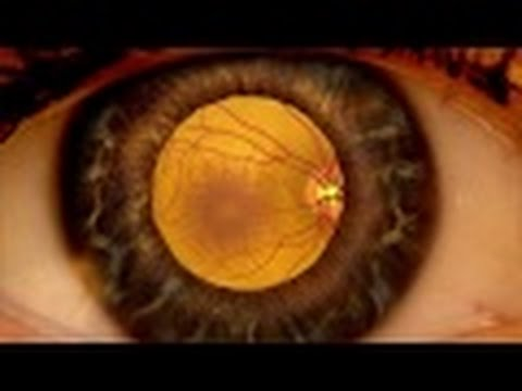 Detecting Age-Related Macular Degeneration (ARMD): Why is Dilation important?