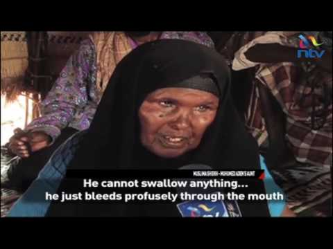 Notorious throat cancer whose cause remains unknown threatening lives in Wajir