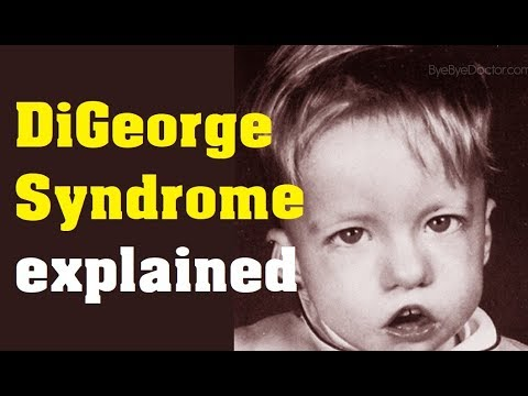 what is digeorge syndrome cause and treatment youtube