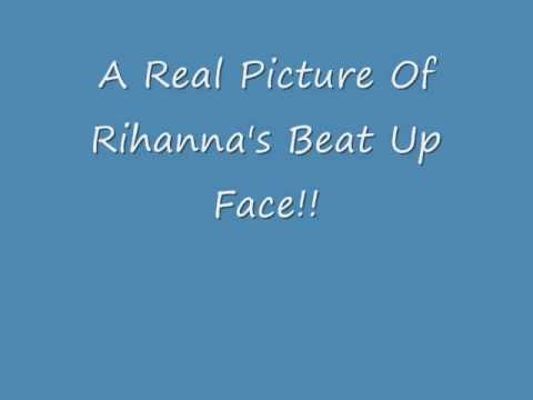 REAL Picture Of Rihanna Beat Up Face!!