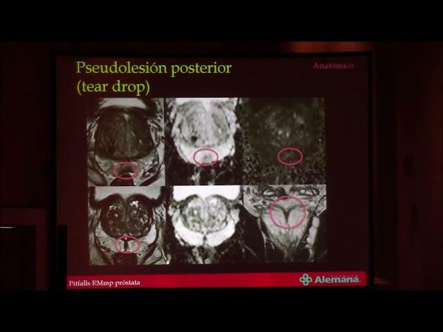 Pitfalls en RMmp en próstata.  Andrés Labra Weitzler
