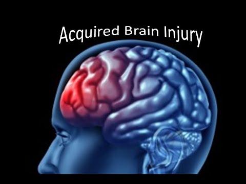 Brain memory booster tips