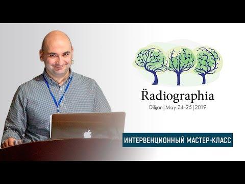 Гамлет Мкртчян. Пункционная биопсия образований легкого под  контролем КТ