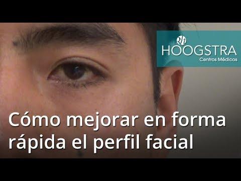 Cómo mejorar en forma rápida el perfil facial (18024)