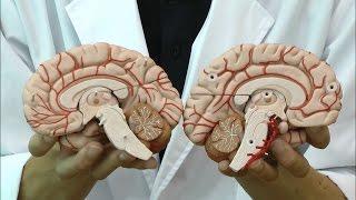 脳表面の動脈や脳底動脈を確認できる脳模型│C20