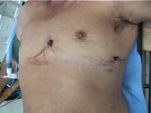 Herida por proyectil de arma de fuego en torax