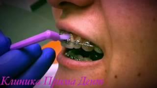 Как правильно чистить зубы с брекетами(ПравильноЧиститьЗубы теперь с брекетами ◇1.