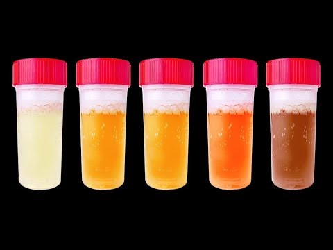 Red, brown, green: Urine colors and what they might mean |  Dr. N Upendra Kumar