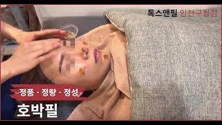 여드름관리 호박필 시술 영상 톡스앤필 인천구월점 인천논…