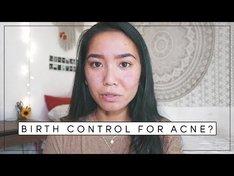how-the-pill-affected-my-skin-|-acne-update