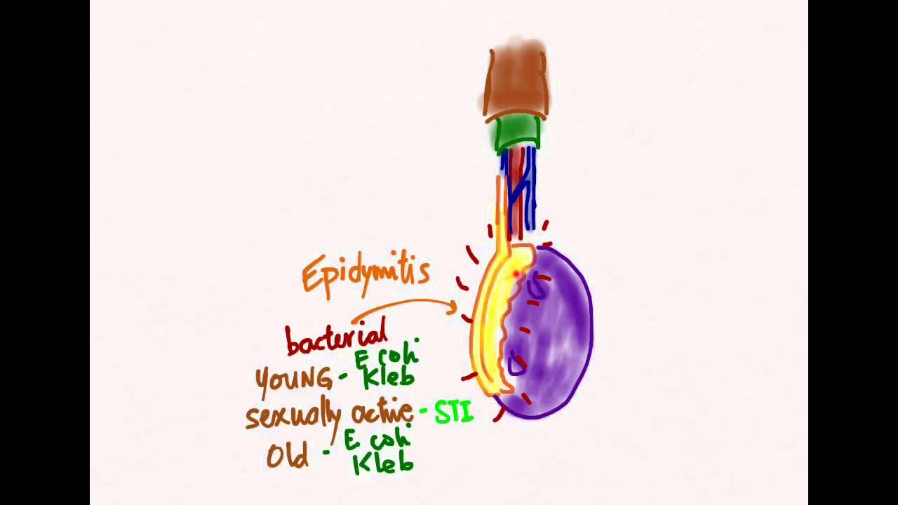acute scrotal pain