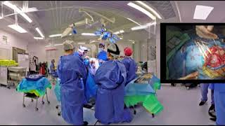 360 Degree Virtual Reality Brain Surgery *WORLD'S FIRST*