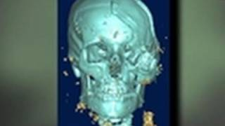 Army Elite - Head Trauma and 3-D Models
