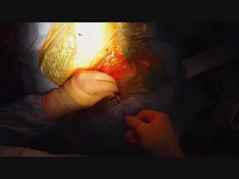 Port a cath insertion echo assisted jugular vein way for Chambre implantable