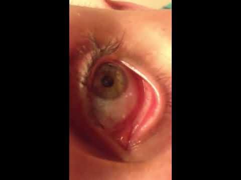 Hookworm in eye