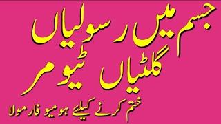 Health tips urdu by Dr.arshad/جسم میں گلٹیاں ٹیومرز رسولیوں کا علاج