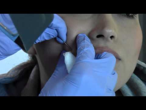 Dr. Jochen Demonstrates Subcission for Acne Scars | Palm Desert | Palm Springs