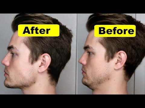 How To Get A Strong Chin And Jawline (Lose Double Chin)