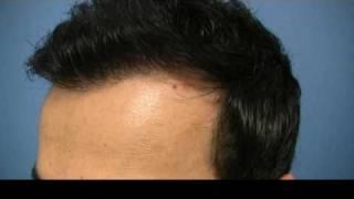 San Francisco Hair Transplant 1.800.859.2266