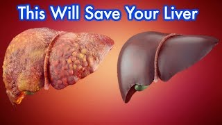 Liver Detox - Eat These 10 foods that Naturally cleanse your liver