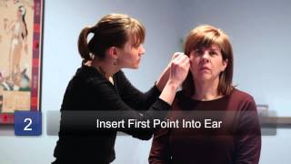 Ear Acupuncture to Lose Weight