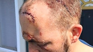 NFL Fan Stabbed 7 Times For Showing Team Pride